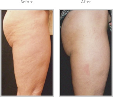 lichaamsbehandeling cellilutis cellilute treatment before after